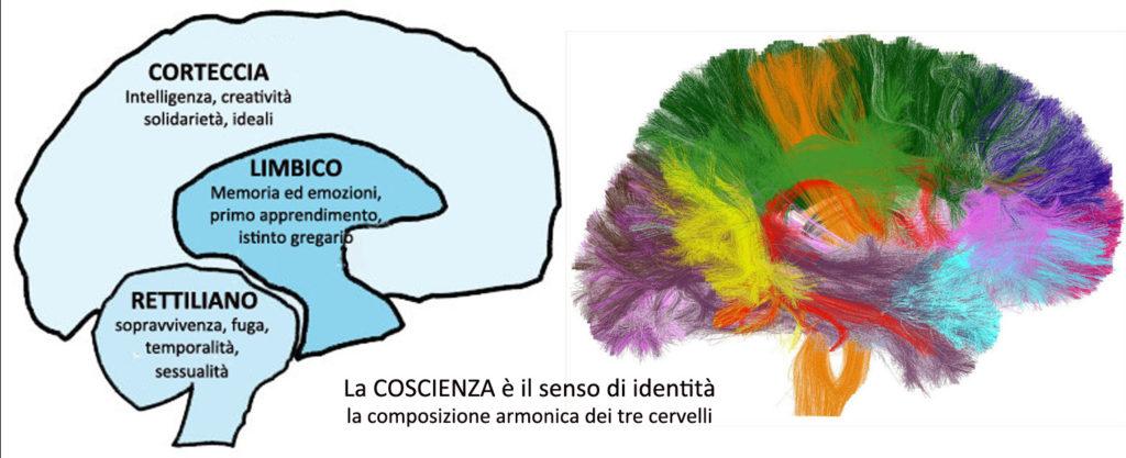 cervello_trino